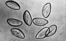 Признаки, симптомы наличия паразитов (глистов) в организме. Проверь себя!